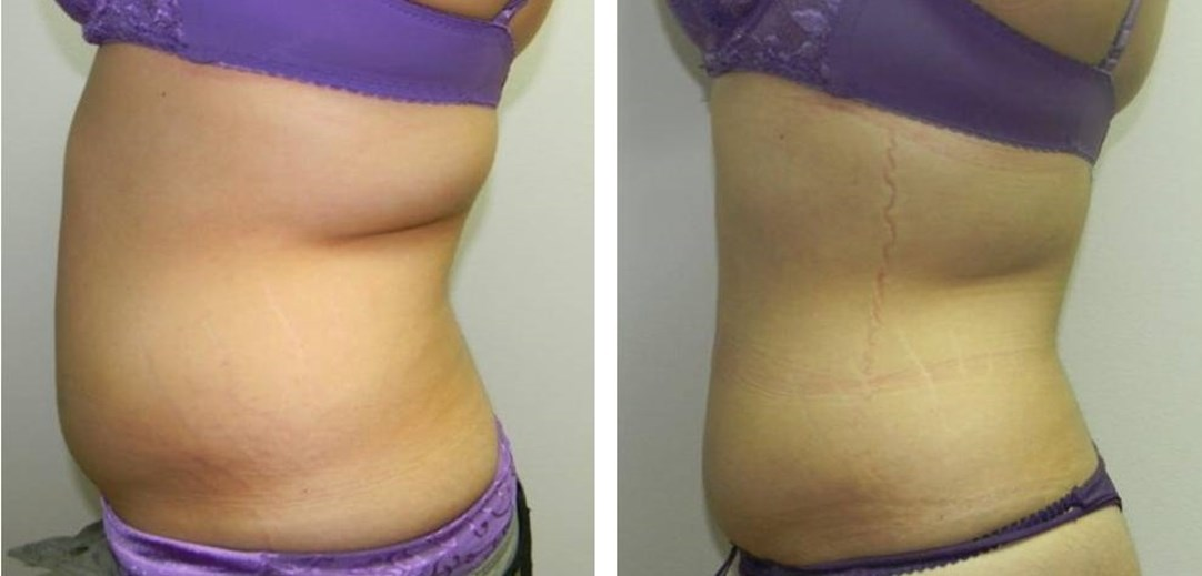 LipofirmPro before and after.jpg